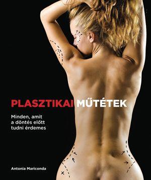Plasztikai műtétek - Antonia Mariconda pdf epub